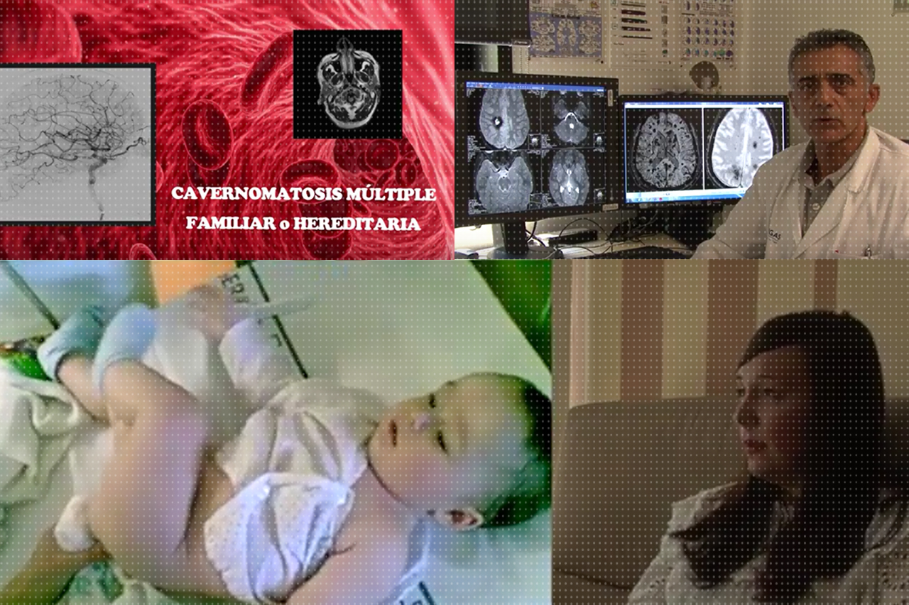 Documental_Cavernomatosis